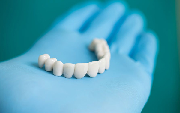 dental implants Miami