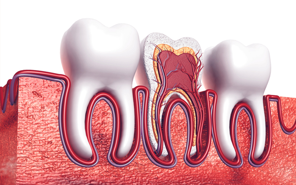 root canal treatment in Miami