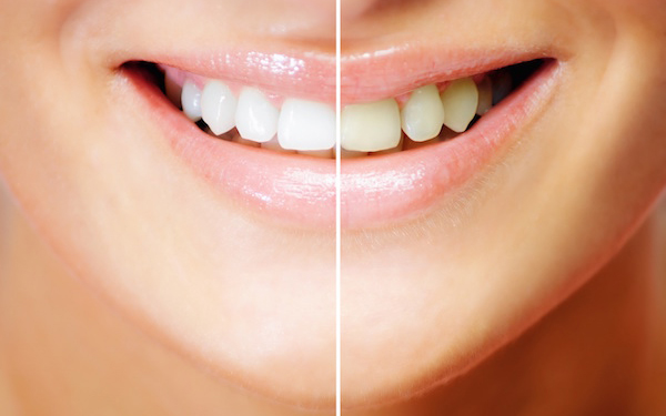 teeth whitening in Miami