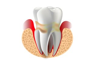periodontal disease treatment in Miami